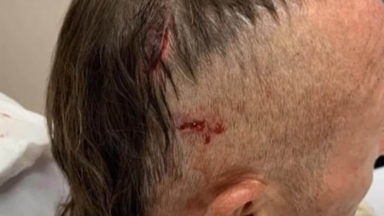 Pictures show Mark Ridge injuries