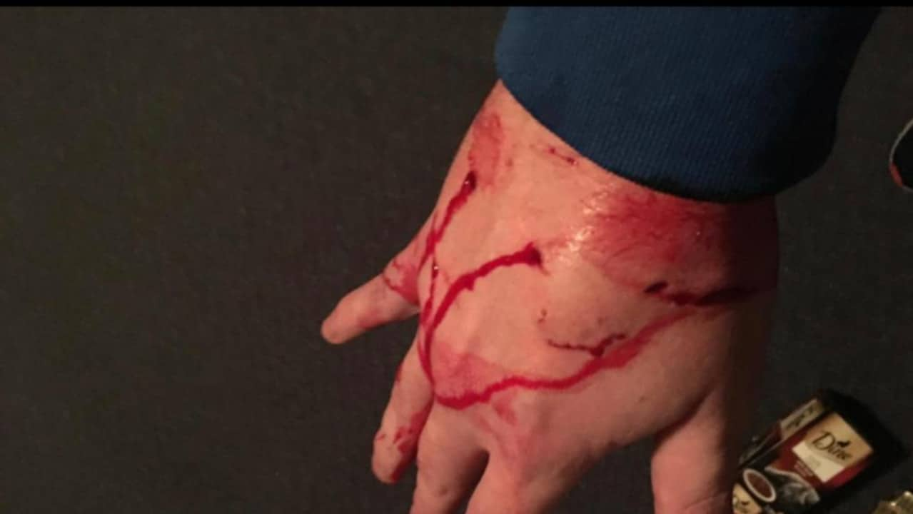 Man almost loses hand to Tinder date's cat after nightmare infection